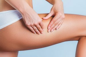 cellulite-treatment-manchester